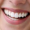 Preview fill dental 300